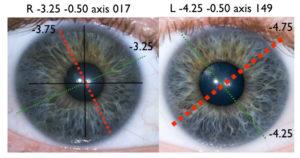 Praxisschwerpunkte Vistara Haiduk, Augen in Balance, Irisdiagnose